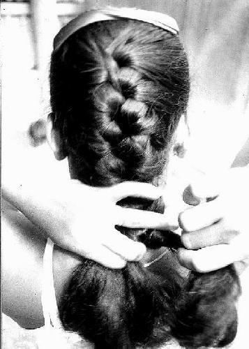 גורמי נשירת שיער